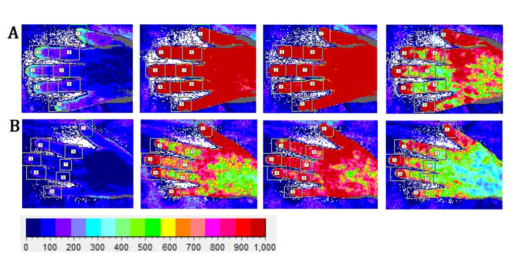 Raynauds project 8 hyperaemic response