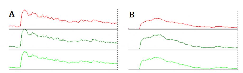 Raynauds project 9 post occlusive hyperaemic response